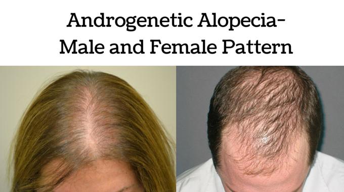 androgenetic alopecia