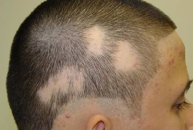 hair loss bald spots
