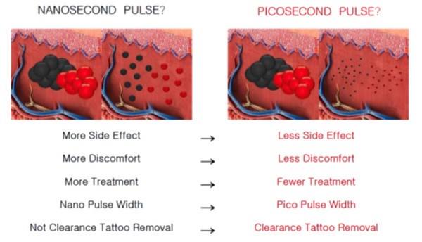 Pico laser pulse