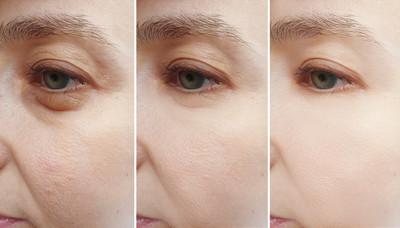 non-surgical-eye-bag-removal