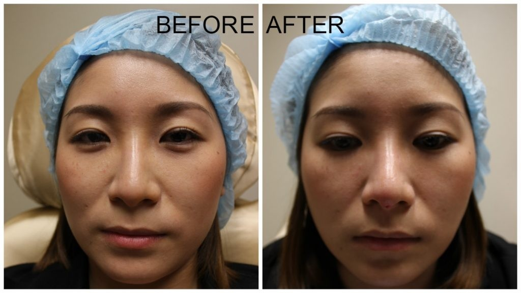 nose thread lift before and after