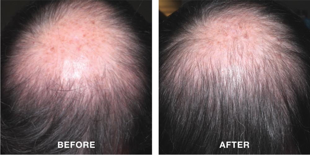 minoxidil results
