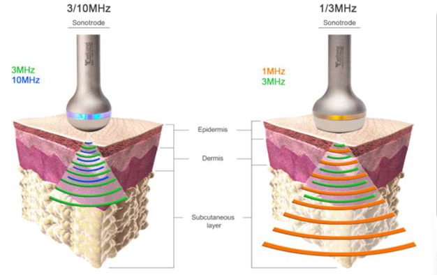 ldm-skin-tightening
