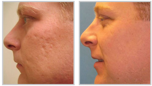 Profractional-laser-treatments-for-acne-scars