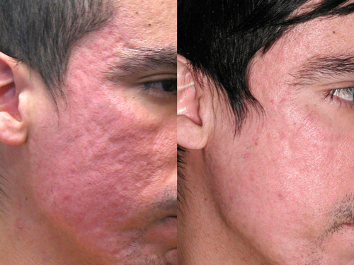 laser-treatments-for-acne-scars