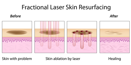 fractional-laser-for-acne