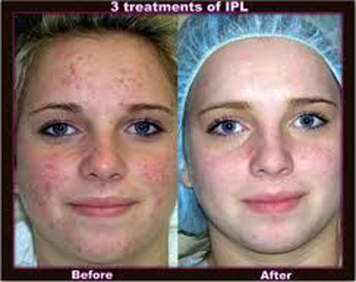intense-pulse-light-before-after