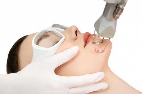 laser-treatment-for-acne