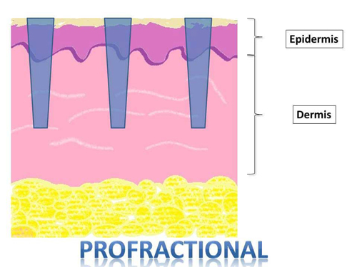 profractional-for-acne