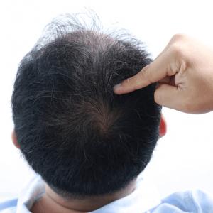 effective treatments male hair loss singapore
