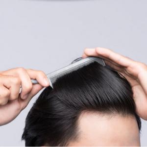 prevent hair loss Singapore